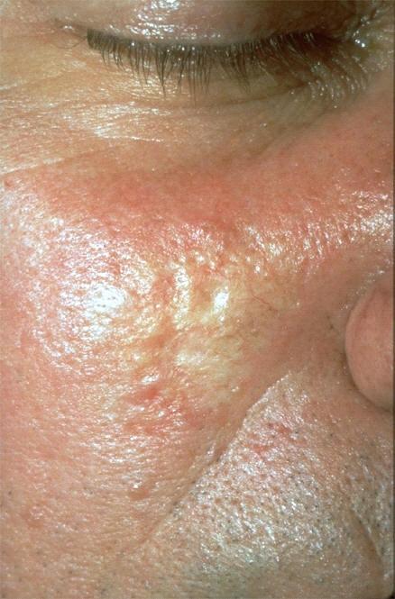 Skin Cancer On Scalp | Skin Check WA