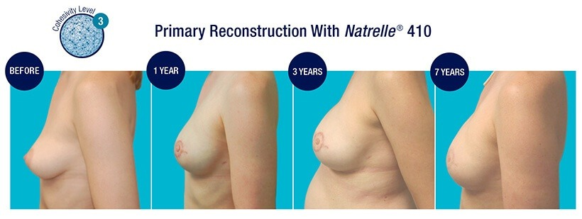 PRIMARY Reconstruction Before and After Natrelle 410