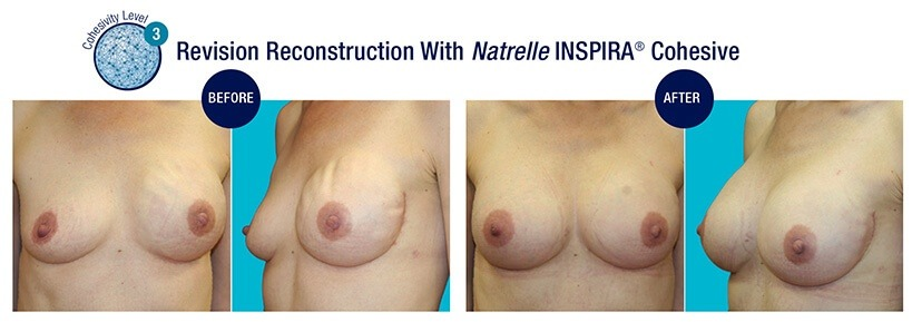 REVISION Reconstruction Before and After Natrelle INSPIRA Cohesive