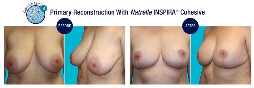 PRIMARY Reconstruction Before and After Natrelle INSPIRA Cohesive