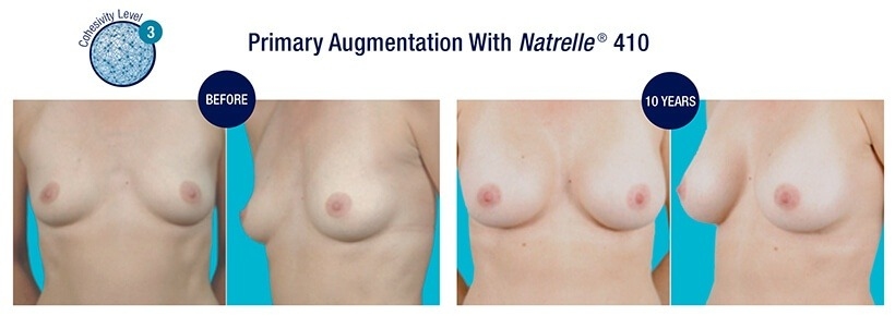 PRIMARY Augmentation Before and After Natrelle 410 Cohesive