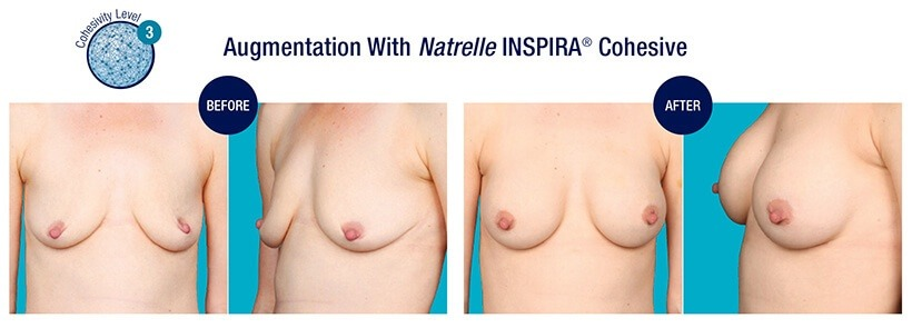 Augmentation Before and After Natrelle INSPIRA Cohesive