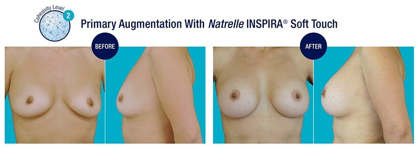 PRIMARY Augmentation Before and After Natrelle INSPIRA Soft Touch