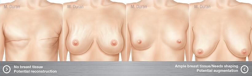 Different Breast Illustration
